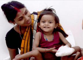 Bambina con 8 arti con la madre