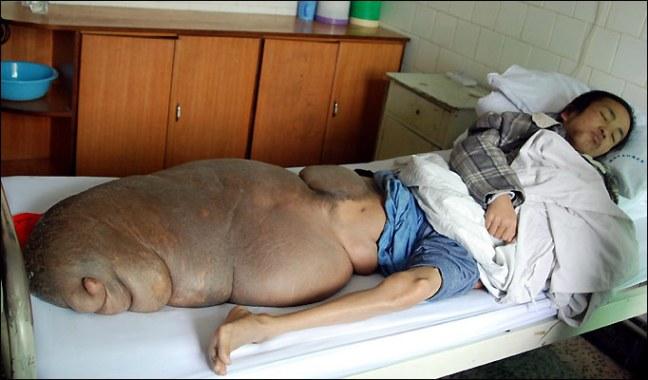 Chen Zongtao tumore