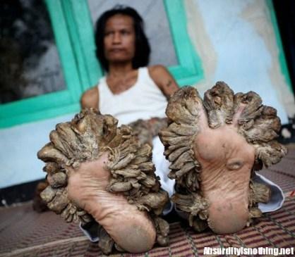 Tree man - L'uomo Albero dettaglio dei piedi