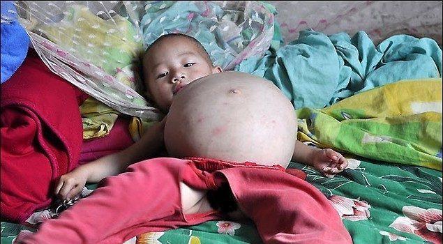 Bambina incinta ad 1 anno, la piccola Kang Mengru sconvolge la Cina