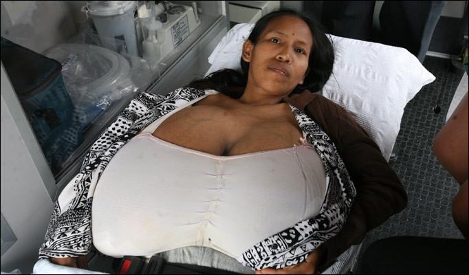 Julia Manihuari - A letto per 6 mesi per colpa delle tette