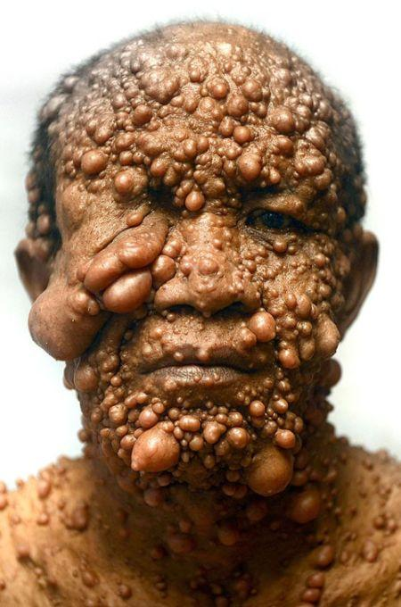 Uomo bolla (3)