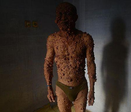 Uomo bolla (2)