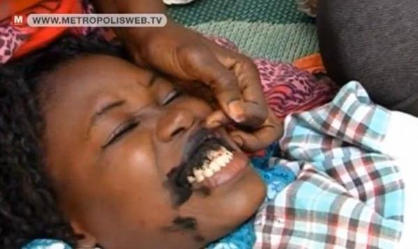 Gengive tatuate di nero