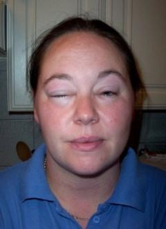 La donna allergica alla palestra (1)