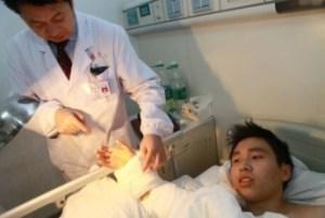 Salvata una mano mozzata dopo averla attaccata alla caviglia (3)