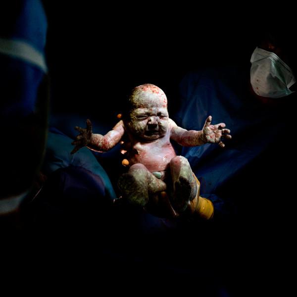 Christian Berthelot cattura i primi attimi di vita dei neonati (1)