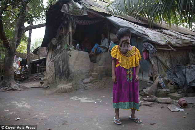 Khadija Khatoon, la ragazza indiana nata senza volto