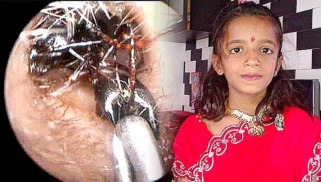 Shreya-Darji-formiche