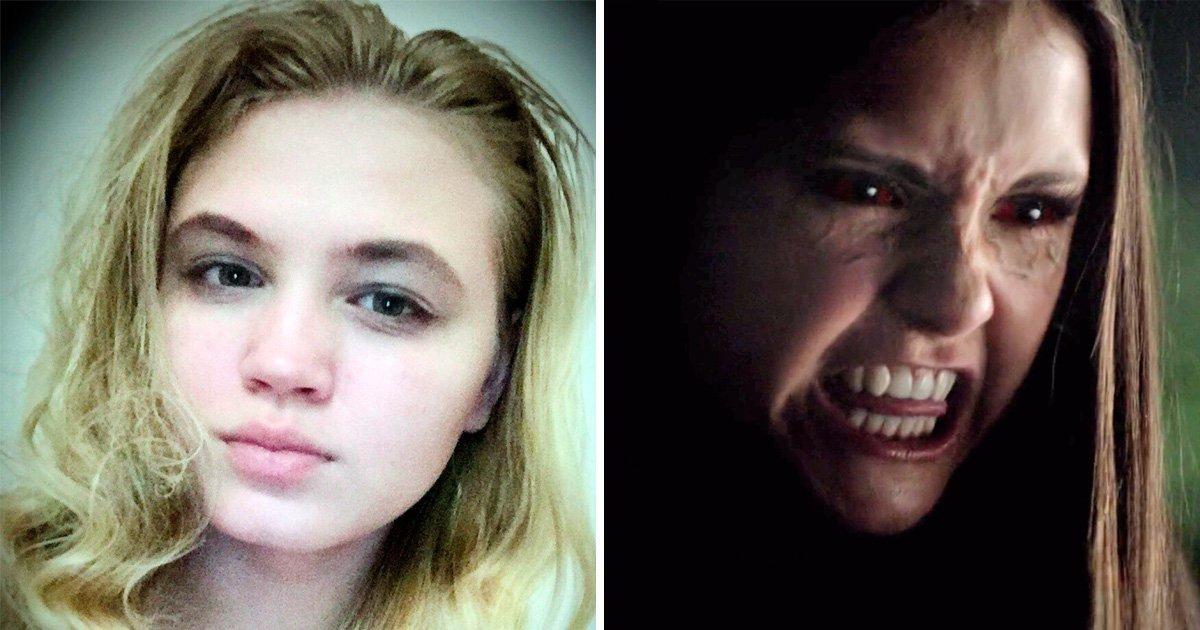 Crede di essere la protagonista di Vampire Diaries, accoltella un ragazzo credendo sia un lupo mannaro