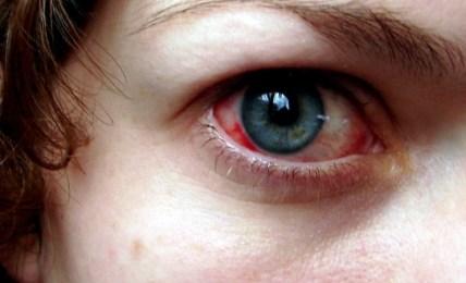 oční lékařka odmítla očkované