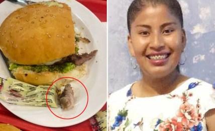 hnijící prst hamburger