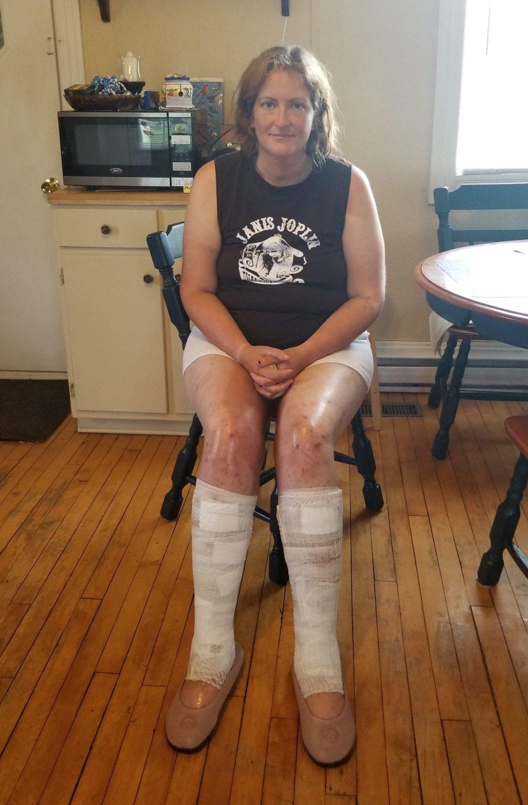 Jenny McLaughlin est ressortie de son aventure avec une bonne frousse et de nombreuses ecchymoses. - La Presse canadienne