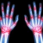 Artrite Reumatoide e Dieta, lo stile di vita influenza la malattia?