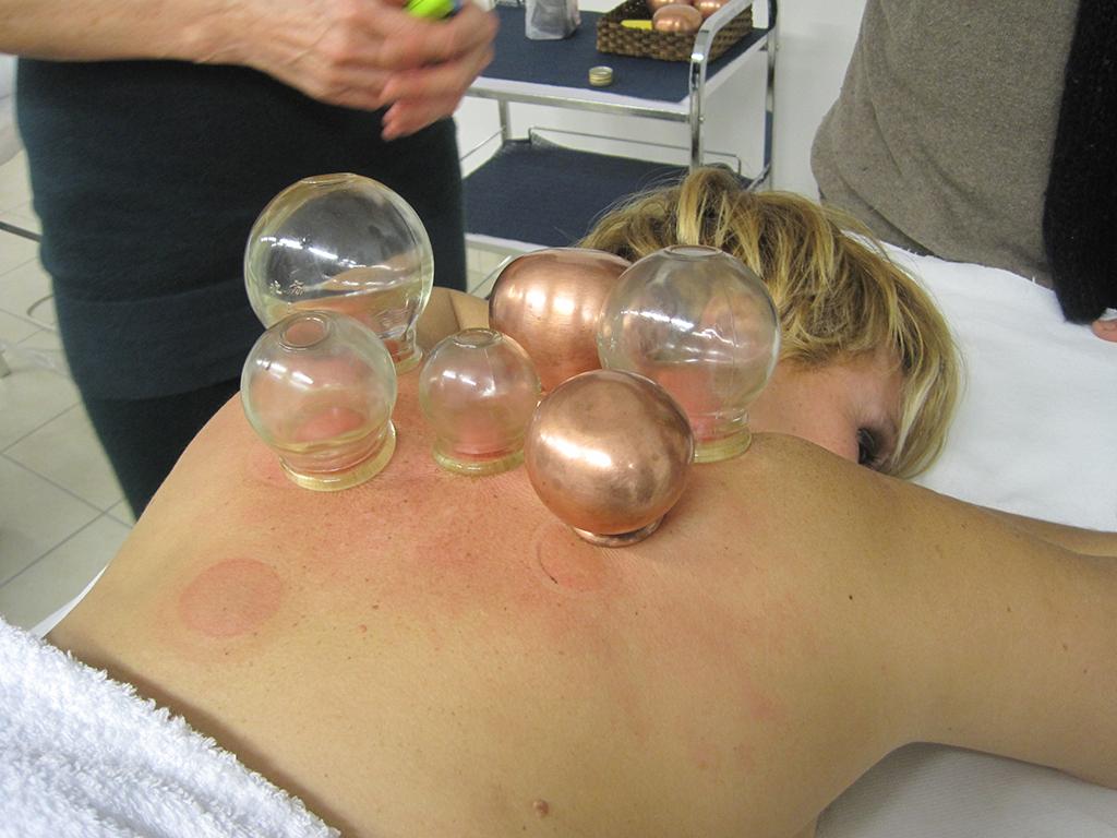 accademia formativa massaggio coppette