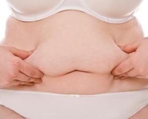 Grasa abdominal en mujeres