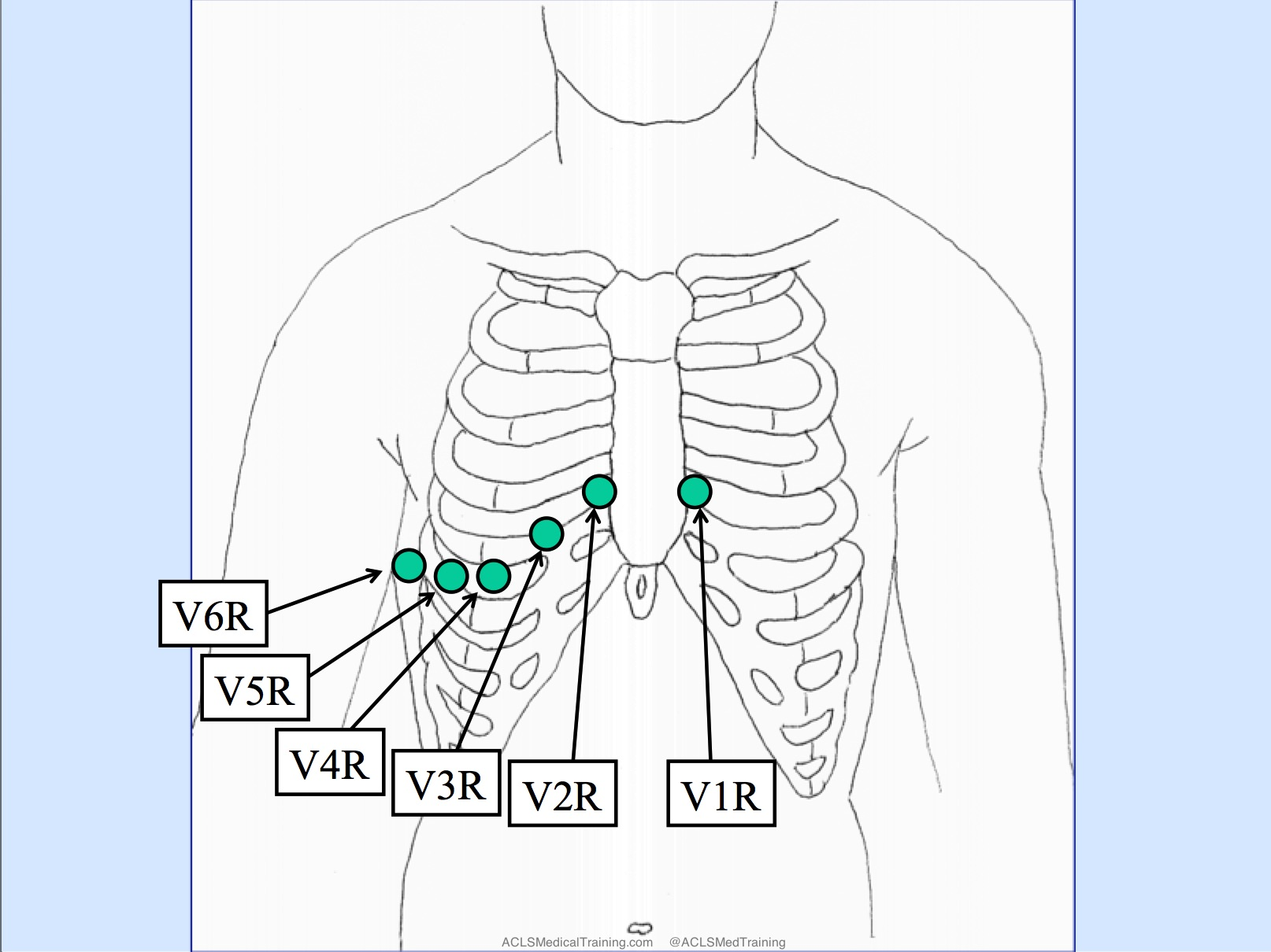 12 Lead Ekg Placement Diagram