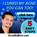 Natural-Acne-Cure-That-Works