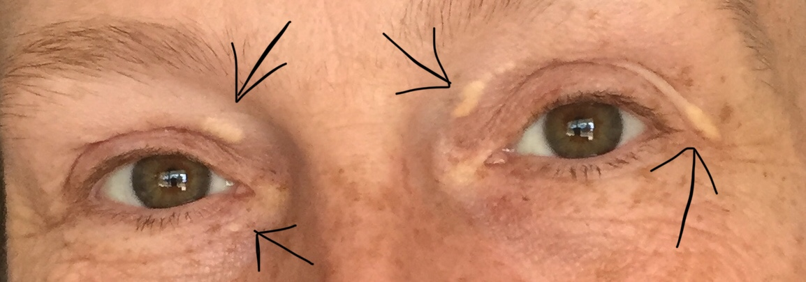 Xanthelasma: The Yellow Spots on My Eyes. What Exactly Are They?