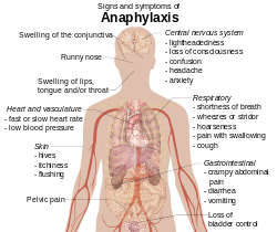 anaphylaxis-symptoms