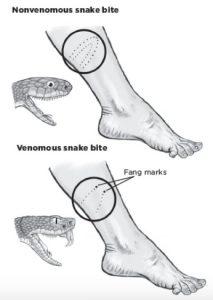Snake-bite-400x564