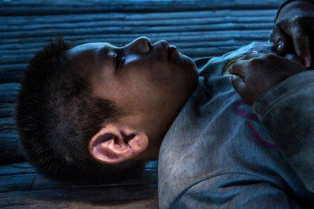Elisban Pérez Pacaya de la etnia yaminahua muestra las marcas de la caracha o sarna humana que no lo deja dormir. El vive en CN Coronel Portillo, una pequeña comunidad que tiene poco tiempo asentada en su nueva ubicación y que aún no cuenta con una posta equipada con los medicamentos necesarios para tratar casos como el de Elisban.