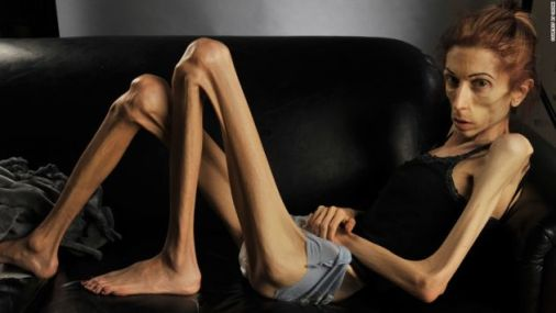 Chica anorexica