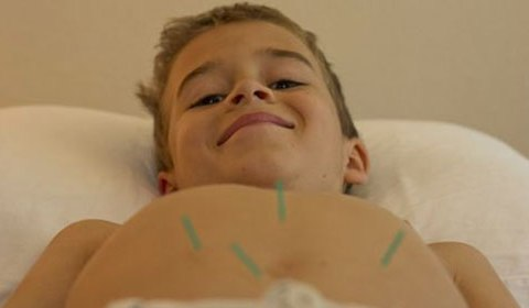 Acupuncture and Chinese Medicine for children