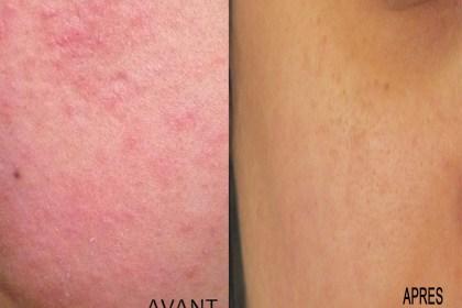 Se débarrasser de son acné