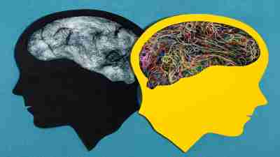 An image of two brains symbolizes ADHD comorbidity, or dual diagnoses