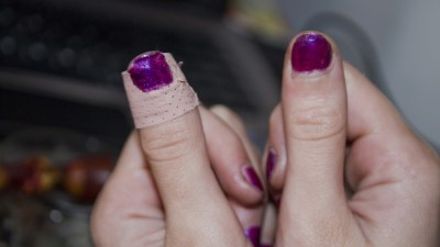 Hands of girl with ADHD with band-aid on thumb and nailpolish painted over it