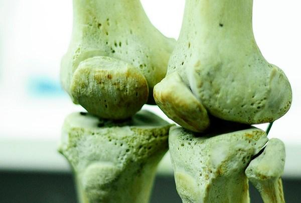 COLOMBIA. Huesos dañados pueden regenerarse a partir de células madre 1