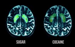 Activación de áreas cerebrales producida por el azúcar y la cocaína