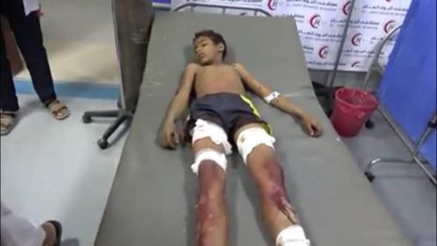 إصابة 5 مدنيين بقصف حوثي على الأحياء السكنية بمدينة تعز