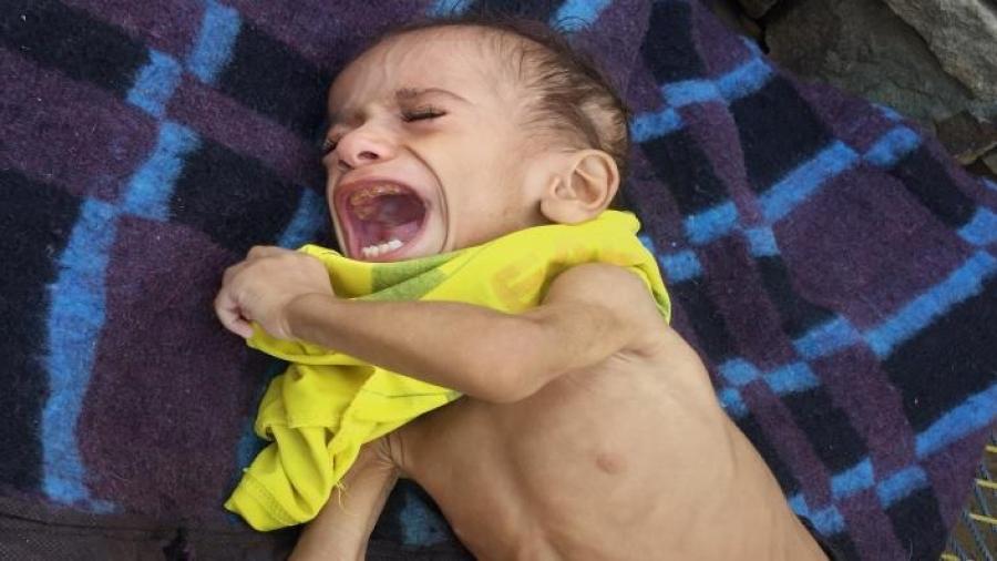 الموت يلتهم الجوعى في اليمن.. والمنظمات تبتلع المساعدات