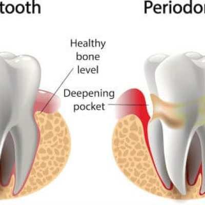 periodontal_gum_therapy1487865768-1 copy