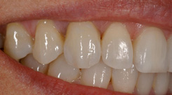 Donna-implant-after