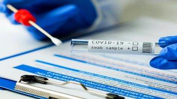 Kabine Toplantısı'nın ardından Cumhurbaşkanı Recep Tayyip Erdoğan açıklamasında zorunlu PCR testi uygulamasına da yer vermişti. Açıklamanın ardından bugün İçişleri Bakanlığı 81 ilin valiliklerine 'PCR testi zorunluluğu' genelgesi gönderdi.