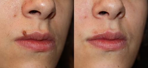 Mole Removal in Delhi, Best results, Procedure and Cost.