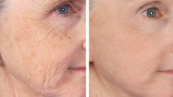 Non-Surgical Anti-Aging Laser Treatments In Delhi