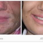 Vitiligo Treatment in Delhi, Procedure, and Post-Guidelines