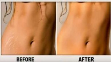 Stretch Marks removal in Delhi, Results, Recovery, and The cost