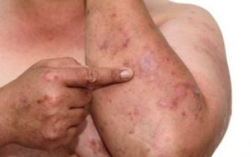 Laser Psoriasis Treatment In Delhi, Advantages, and Risks