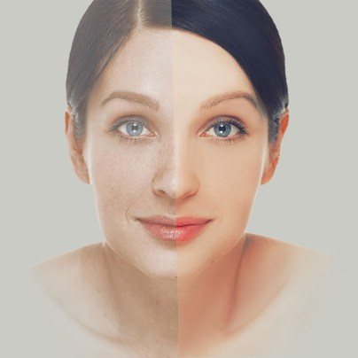 Laser Resurfacing Treatment Question and Answer
