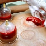 Cupping Treatment in Delhi