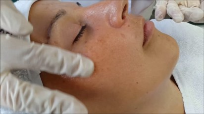 Yellow Peel Treatment-Anti Pigmentation Solution, Benefits