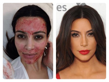 PRP for skin