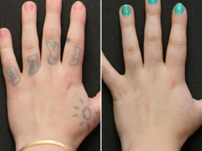 Tattoo Removal Recovery, Tips for Better Result