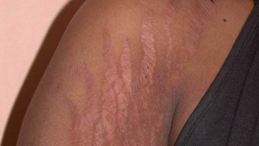 Stretch Marks Removal Question And Answer