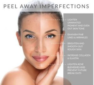 Chemical Peel Treatment And Its Types